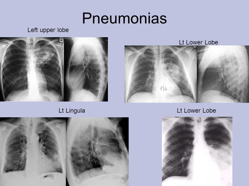 Pneumonias Left upper lobe Lt Lower LobeLt Lingula Lt Lower Lobe