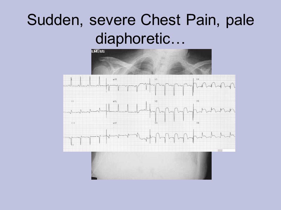 Sudden, severe Chest Pain, pale diaphoretic…