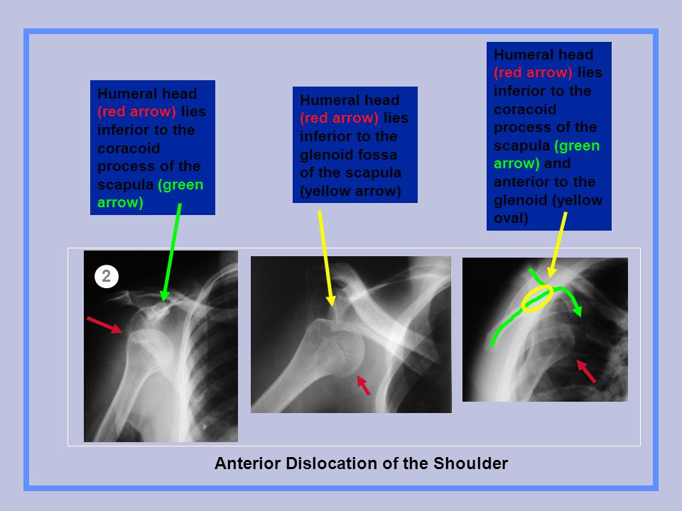 Anterior Dislocation of the Shoulder 2 Humeral head (red arrow) lies inferior to the coracoid process of the scapula (green arrow) Humeral head (red a
