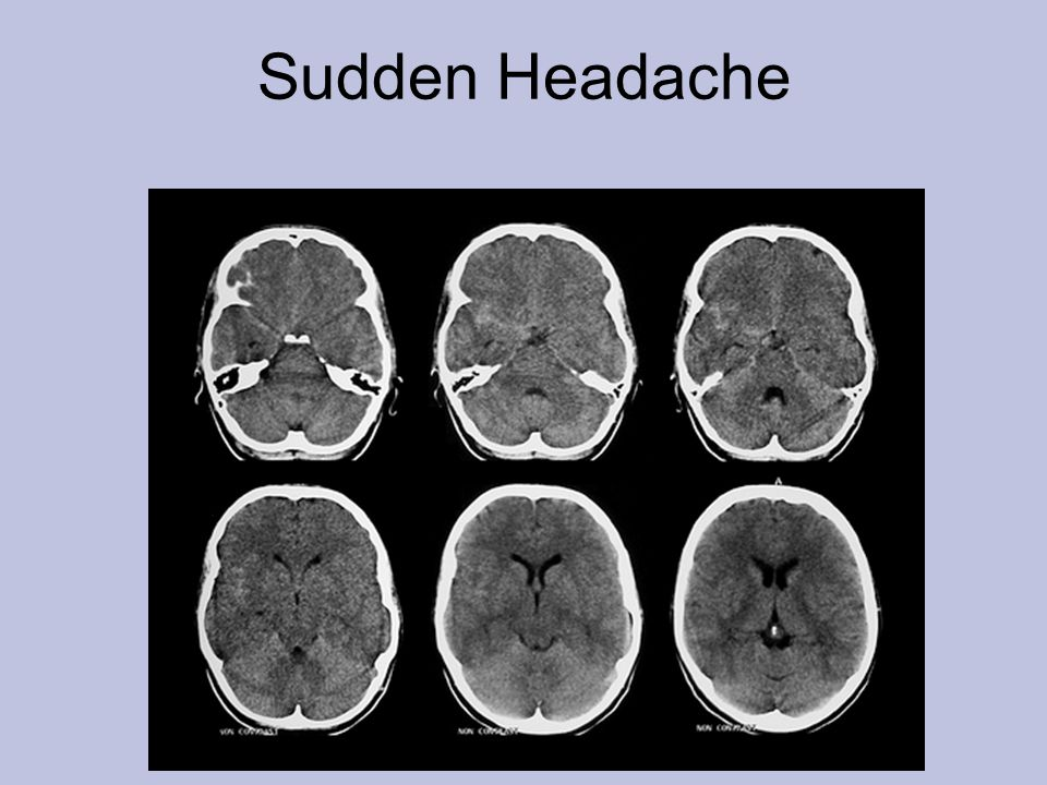 Sudden Headache