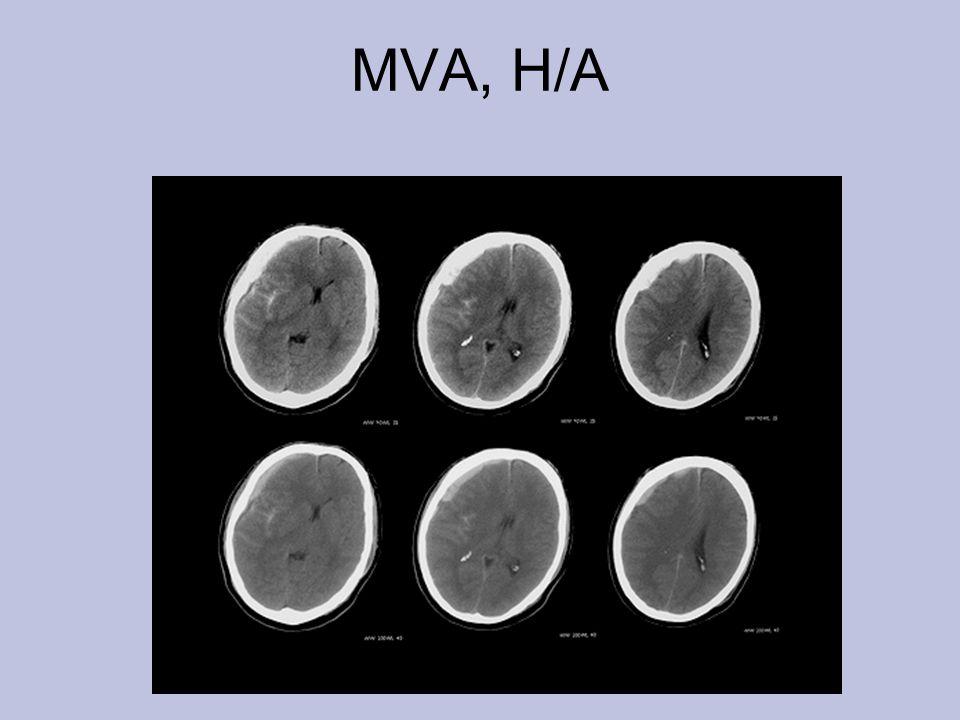 MVA, H/A