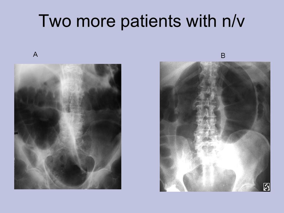 Two more patients with n/v A B