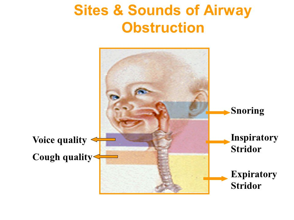 Sites & Sounds of Airway Obstruction Snoring Inspiratory Stridor Expiratory Stridor Voice quality Cough quality