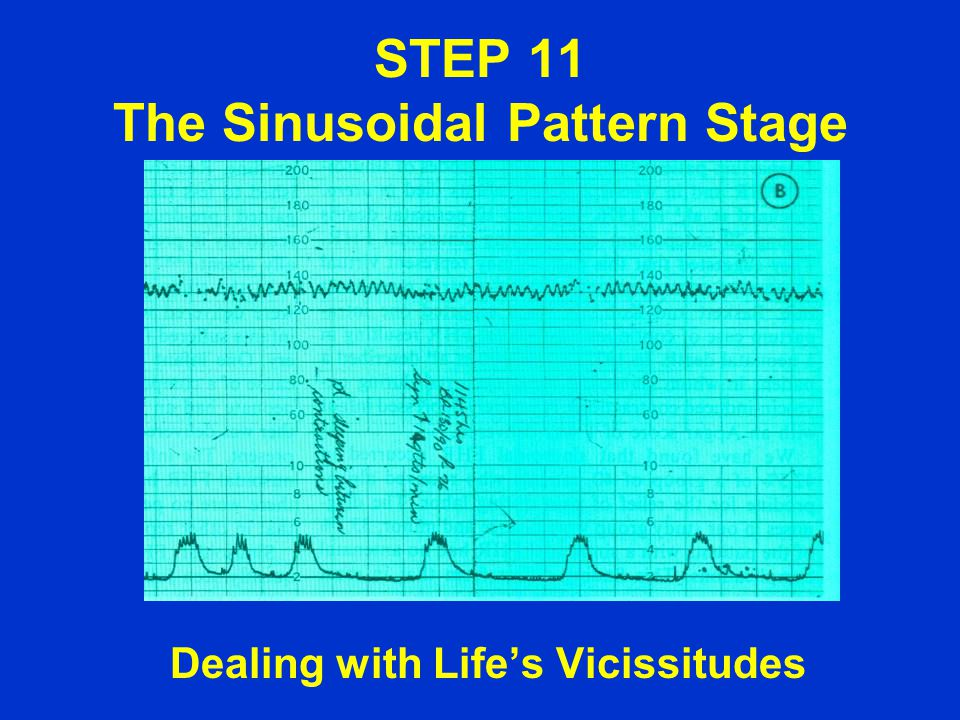 STEP 11 The Sinusoidal Pattern Stage Dealing with Life's Vicissitudes