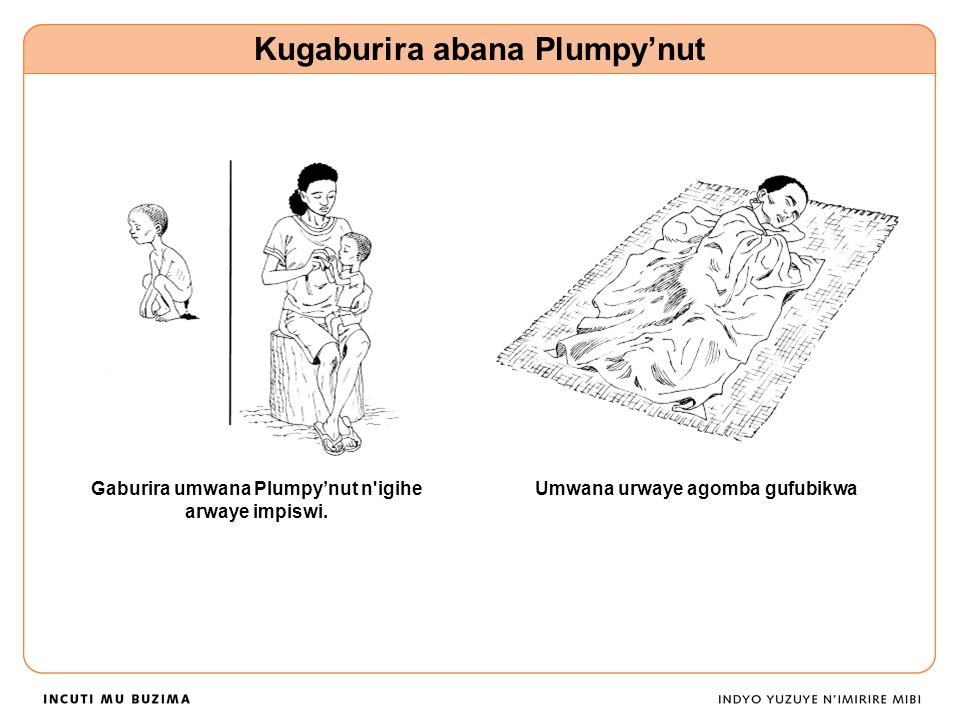 Gaburira umwana Plumpy'nut n igihe arwaye impiswi.