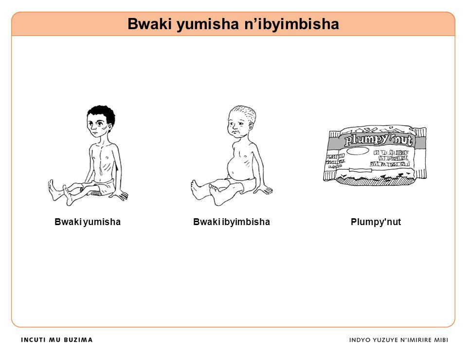 Bwaki yumisha Bwaki yumisha n'ibyimbisha Bwaki ibyimbishaPlumpy nut