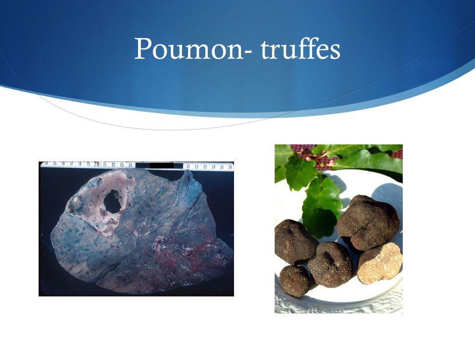 Poumon- truffes