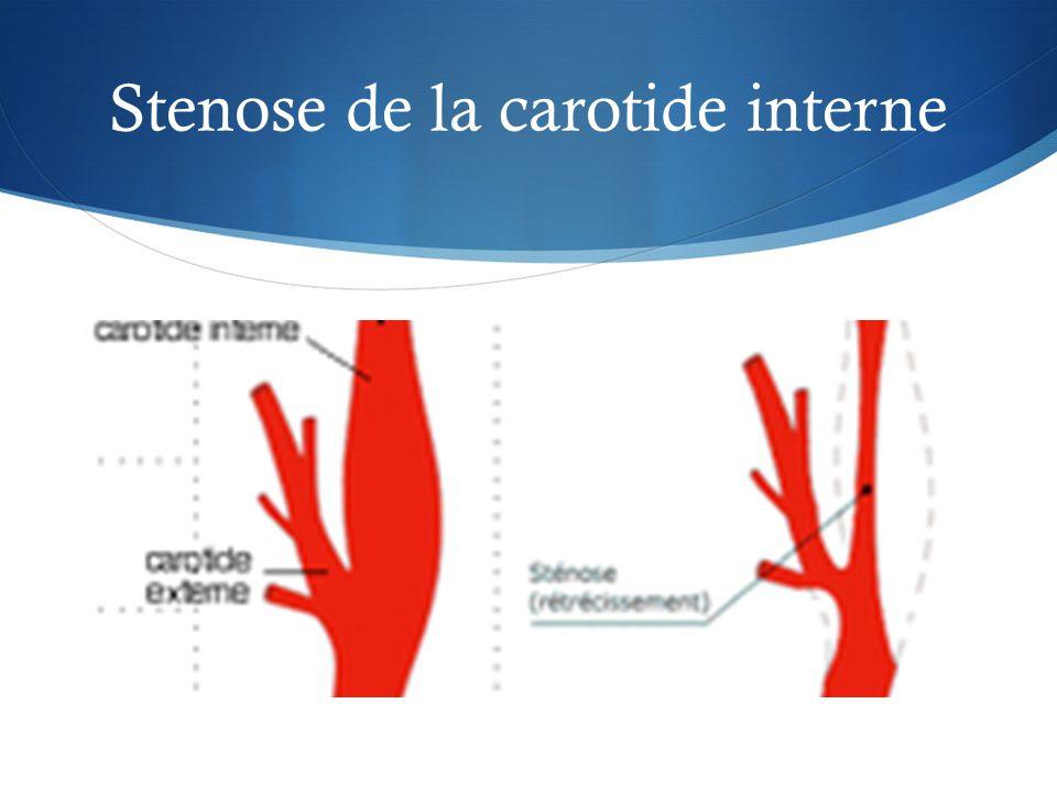 Stenose de la carotide interne