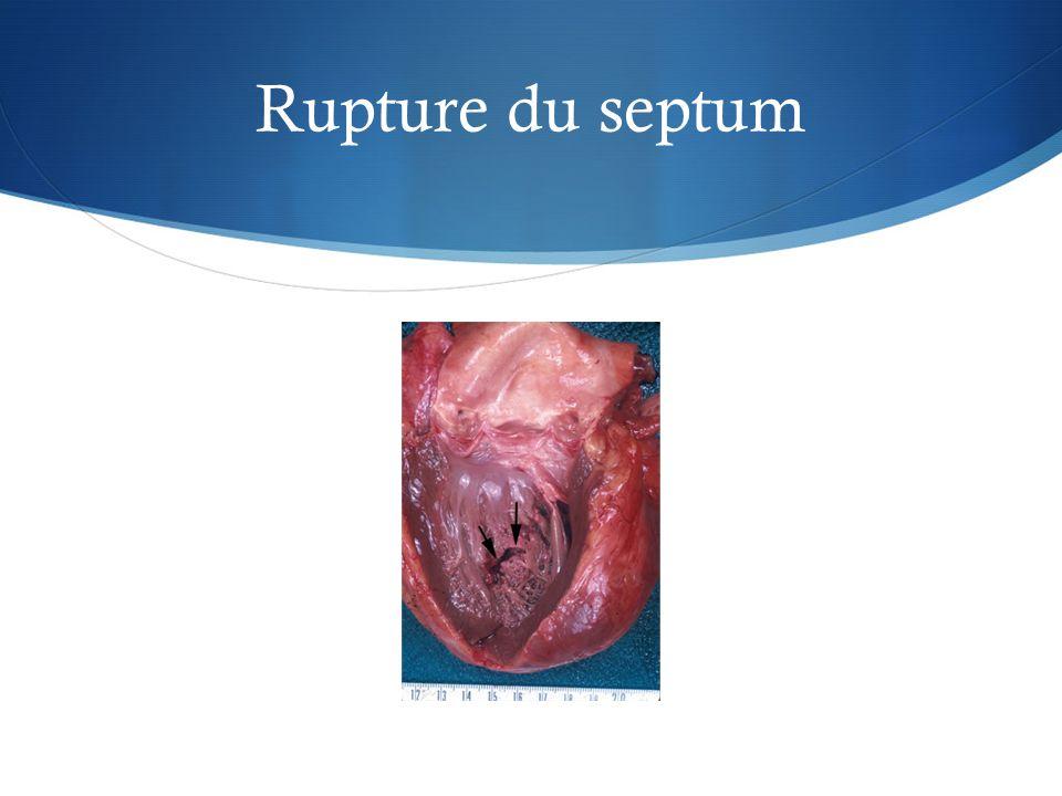 Rupture du septum