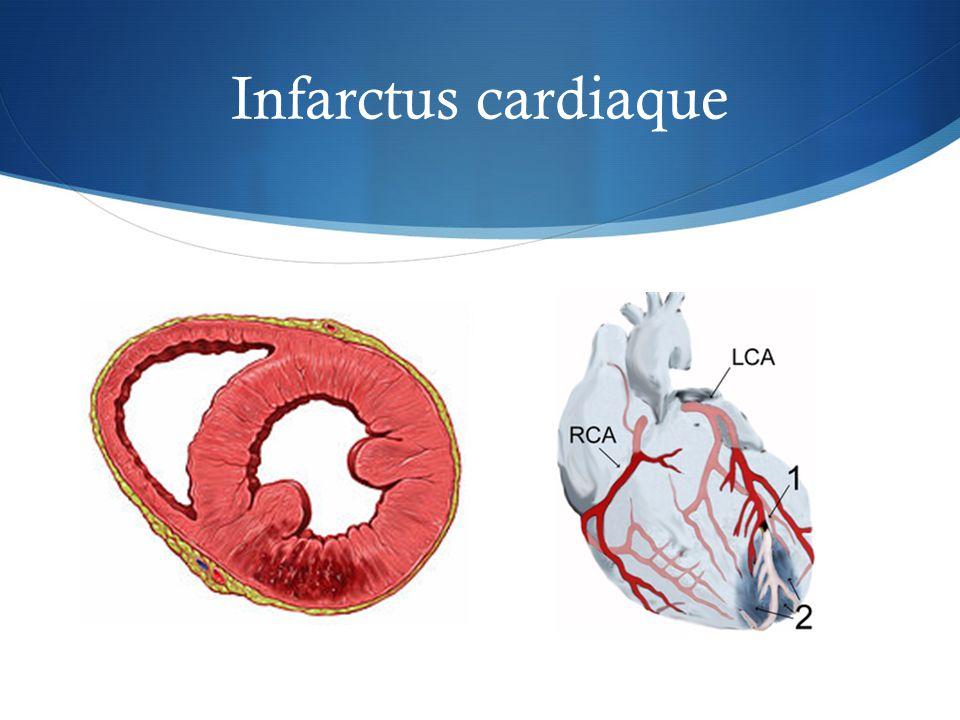 Infarctus cardiaque