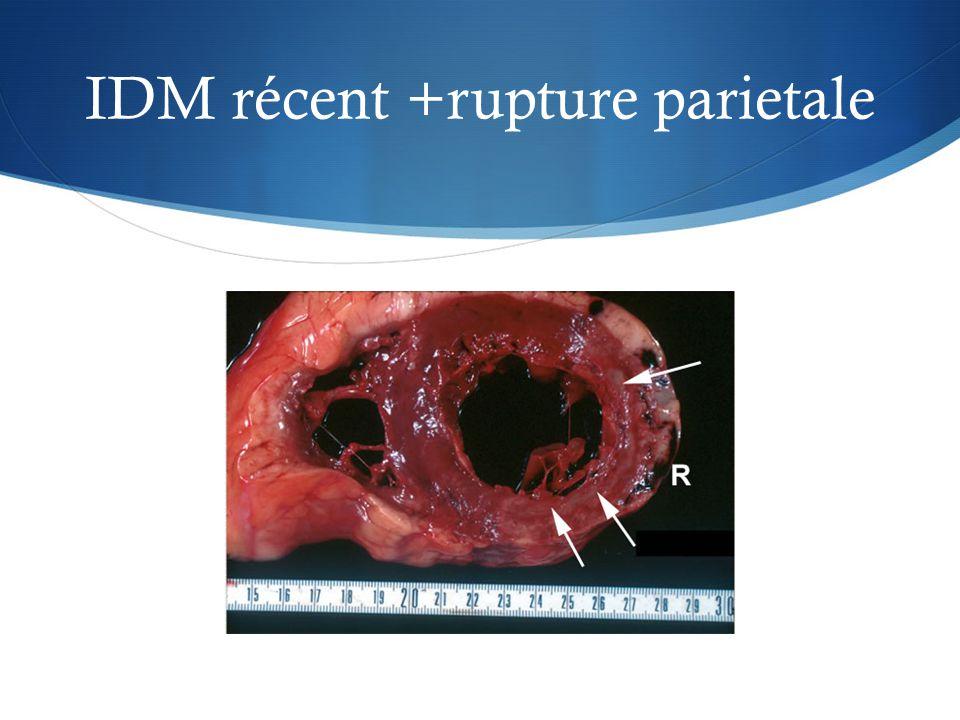 IDM récent +rupture parietale