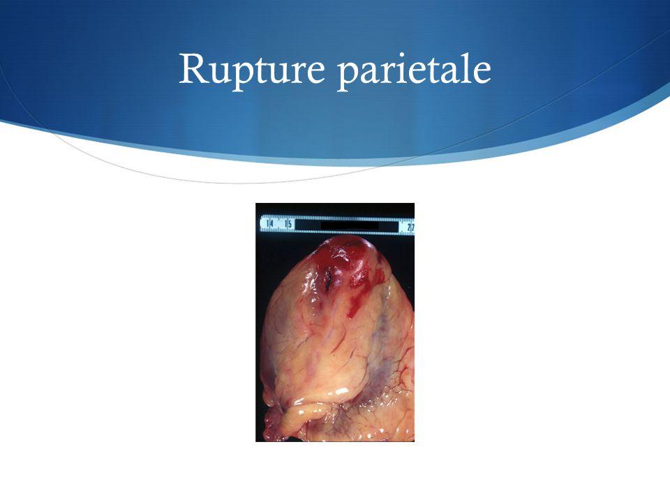 Rupture parietale