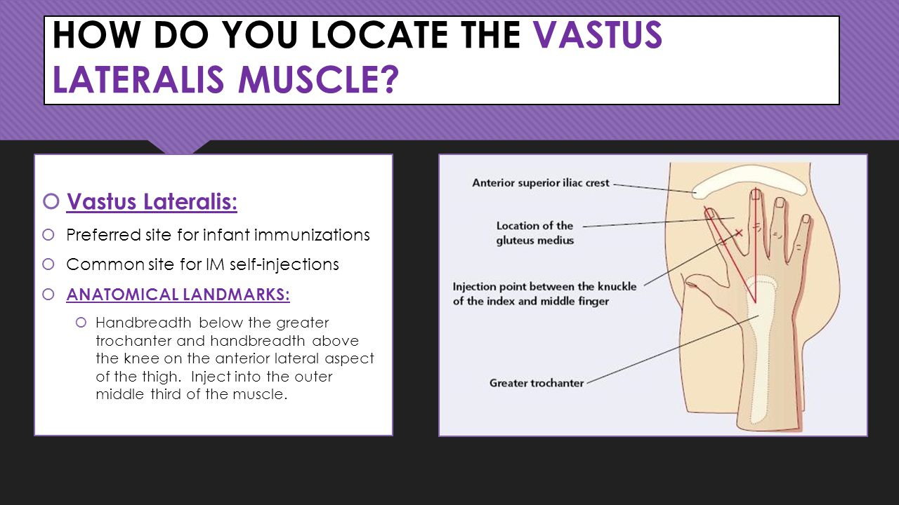 HOW DO YOU LOCATE THE VASTUS LATERALIS MUSCLE.