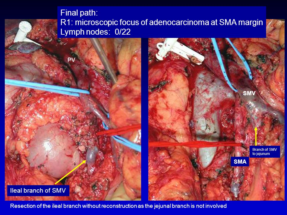 Final path: R1: microscopic focus of adenocarcinoma at SMA margin Lymph nodes: 0/22 SMA SMV Resection of the ileal branch without reconstruction as th