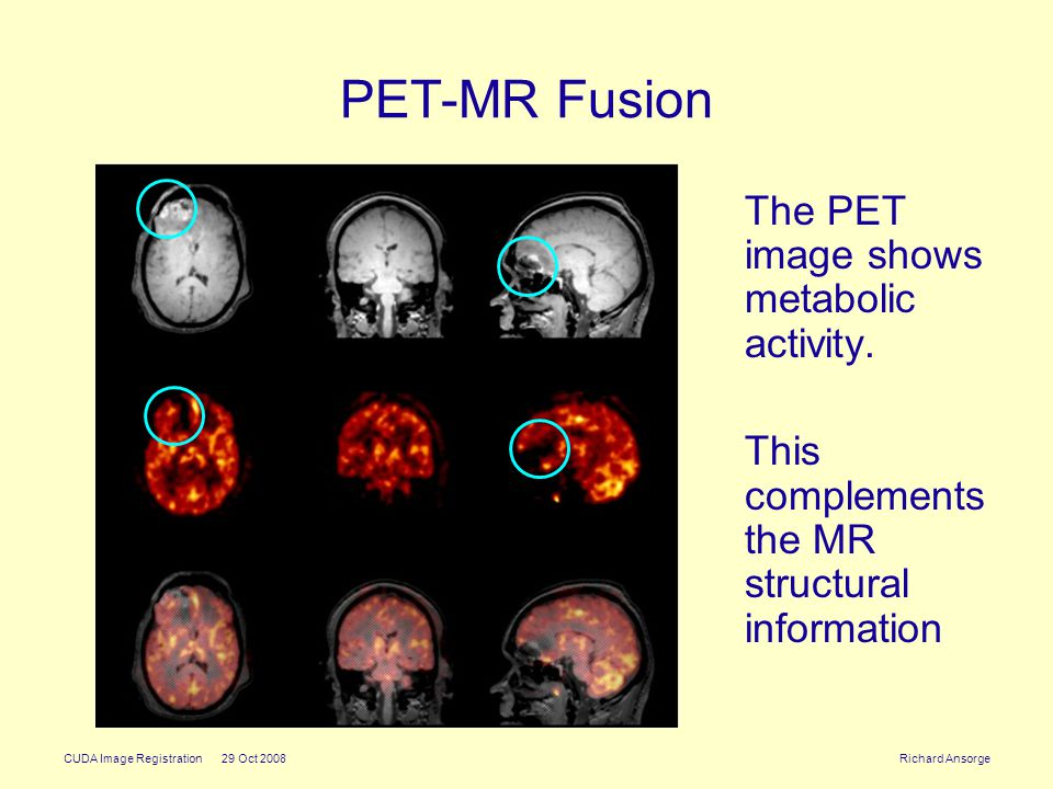 CUDA Image Registration 29 Oct 2008 Richard Ansorge PET-MR Fusion The PET image shows metabolic activity.