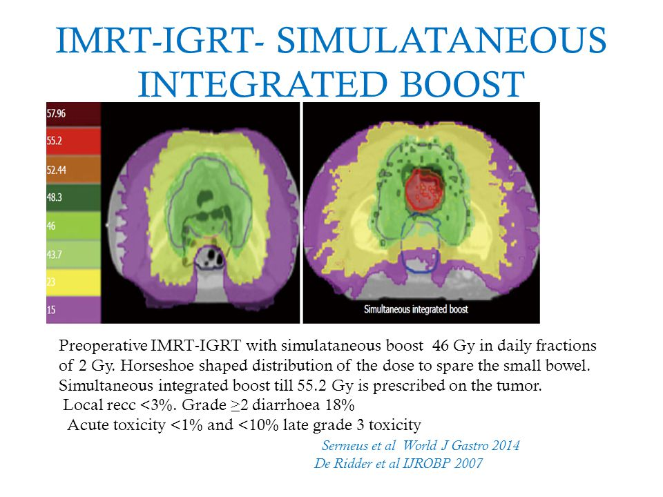IMRT-IGRT- SIMULATANEOUS INTEGRATED BOOST Preoperative IMRT-IGRT with simulataneous boost 46 Gy in daily fractions of 2 Gy. Horseshoe shaped distribut
