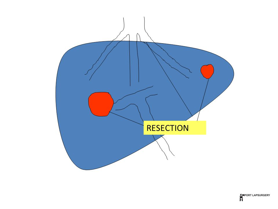 Margins A clear margin is necessary to prevent local recurrence in the liver