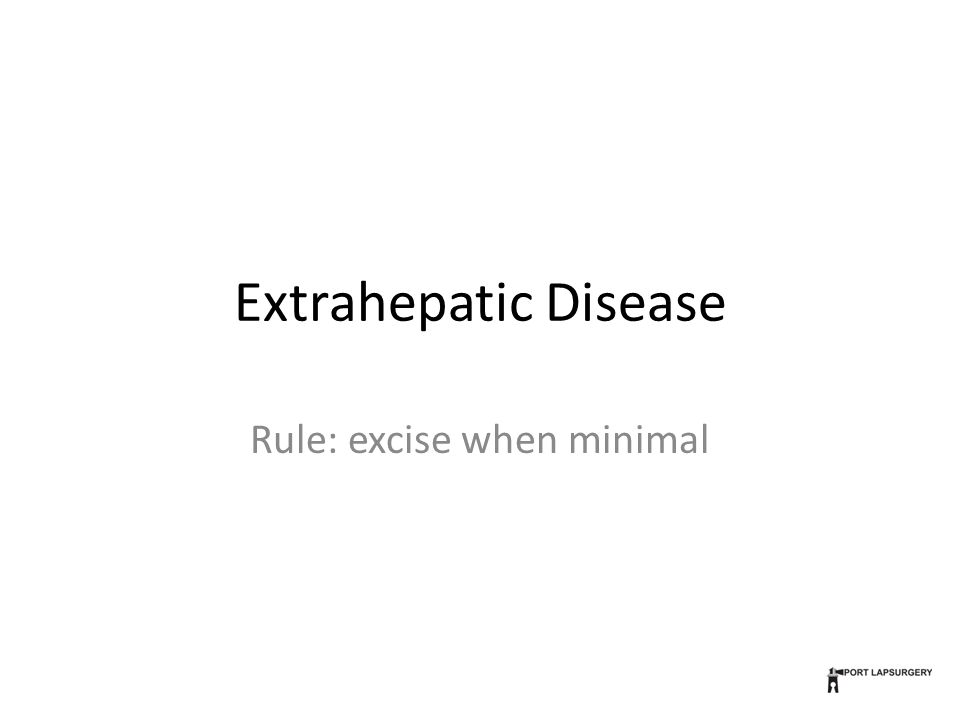 Extrahepatic Disease Rule: excise when minimal
