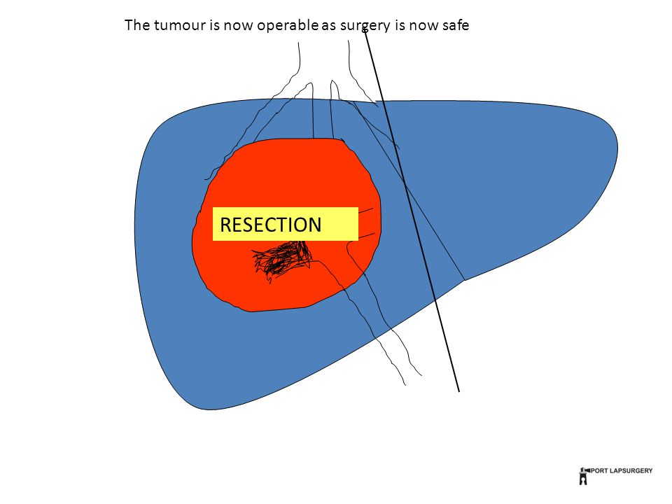 RESECTION The tumour is now operable as surgery is now safe