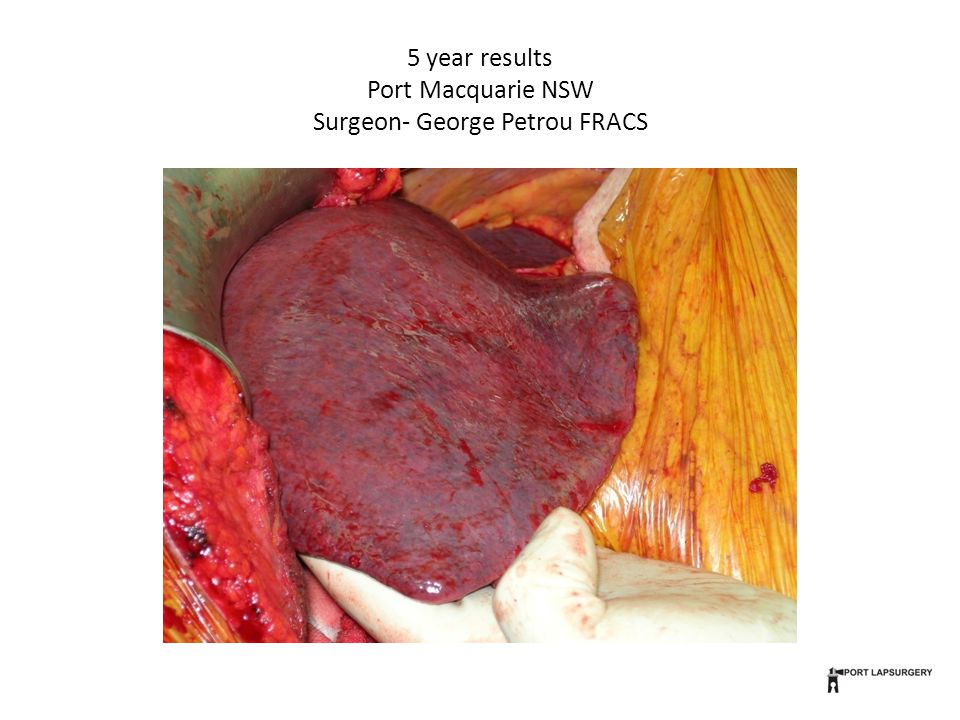 5 year results Port Macquarie NSW Surgeon- George Petrou FRACS
