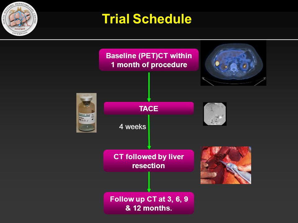 Baseline (PET)CT within 1 month of procedure TACE CT followed by liver resection Follow up CT at 3, 6, 9 & 12 months.