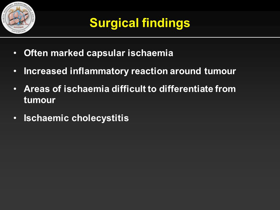 Surgical findings Often marked capsular ischaemia Increased inflammatory reaction around tumour Areas of ischaemia difficult to differentiate from tumour Ischaemic cholecystitis