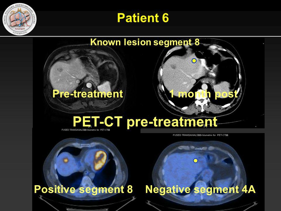 Patient 6 Known lesion segment 8 Pre-treatment 1 month post PET-CT pre-treatment Positive segment 8 Negative segment 4A