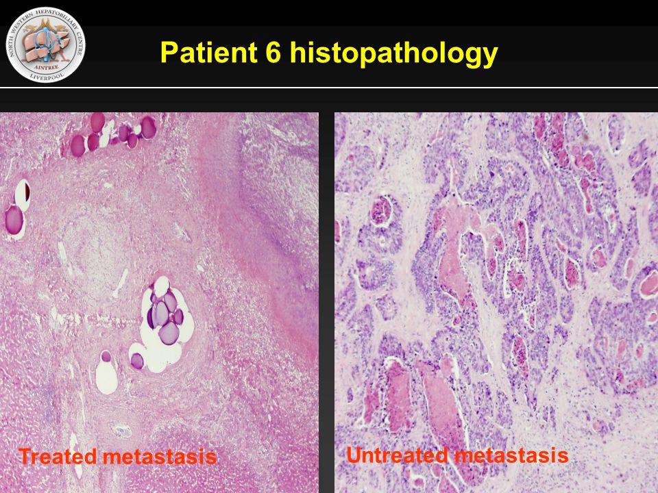 Patient 6 histopathology Treated metastasis Untreated metastasis
