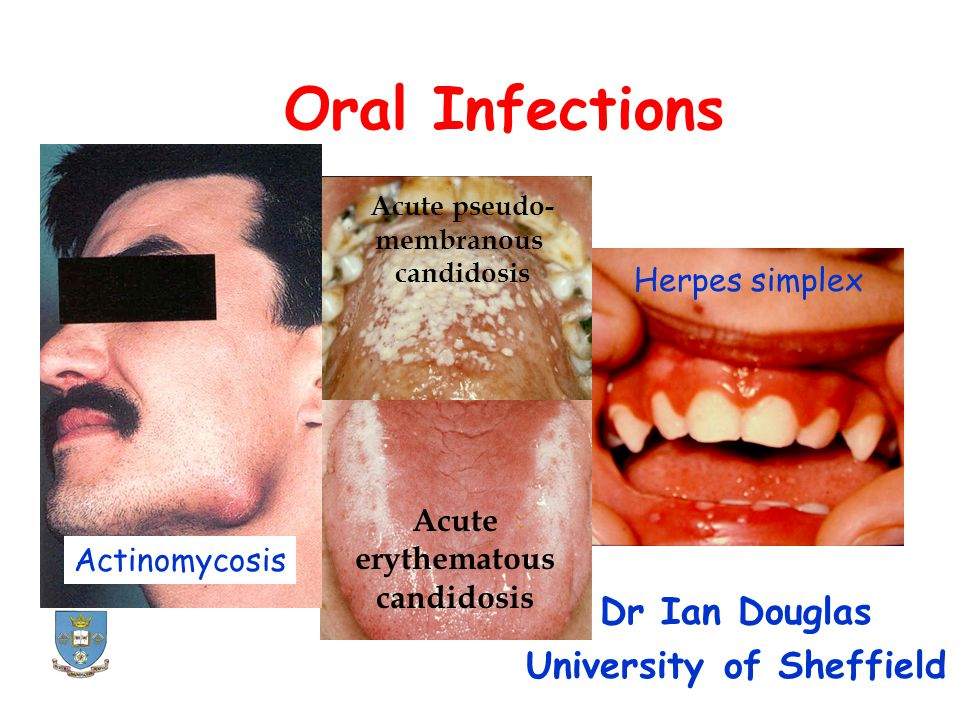 Acute pseudo- membranous candidosis Acute erythematous candidosis Actinomycosis Herpes simplex Oral Infections Dr Ian Douglas University of Sheffield