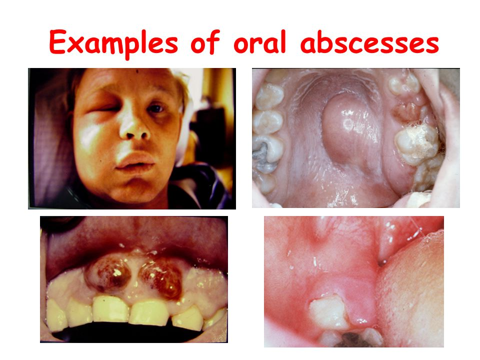 Examples of oral abscesses