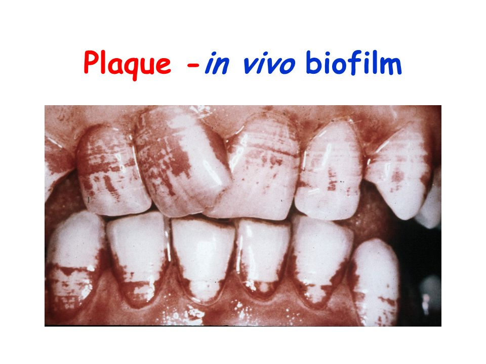 Plaque -in vivo biofilm