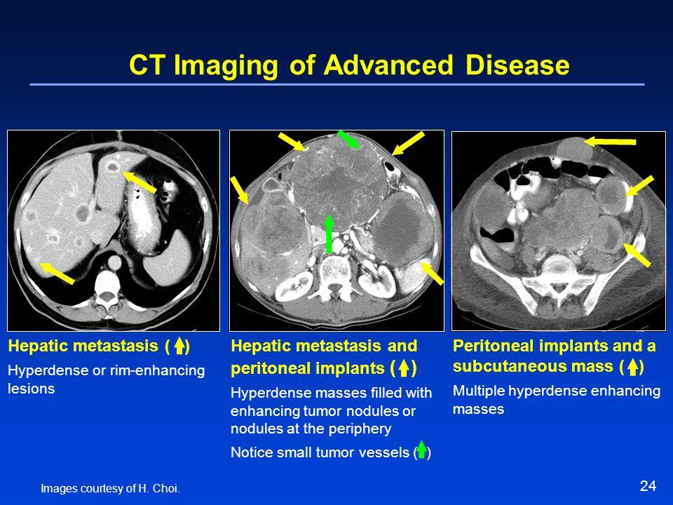 24 CT Imaging of Advanced Disease Hepatic metastasis ( ) Hyperdense or rim-enhancing lesions Hepatic metastasis and peritoneal implants ( ) Hyperdense