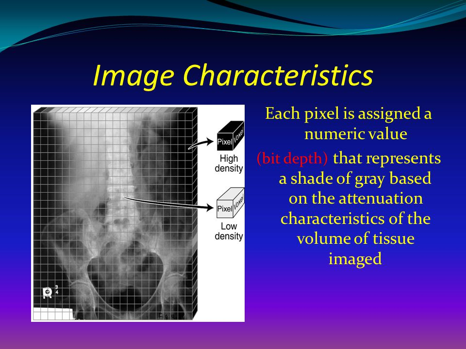 Image Characteristics Each pixel is assigned a numeric value (bit depth) that represents a shade of gray based on the attenuation characteristics of t