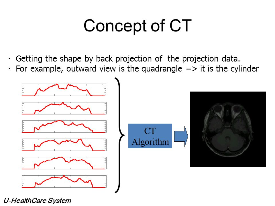 U-HealthCare System What is the CT? Mathematical transform to the measured data. Reconstruct n dimension function (image) => projection data of n – 1