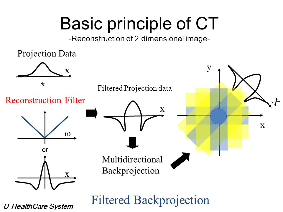 U-HealthCare System X Basic principle of CT -Reconstruction of 2 dimensional image- Simple Backprojection Projection Data Blur x y x y curvilinear int