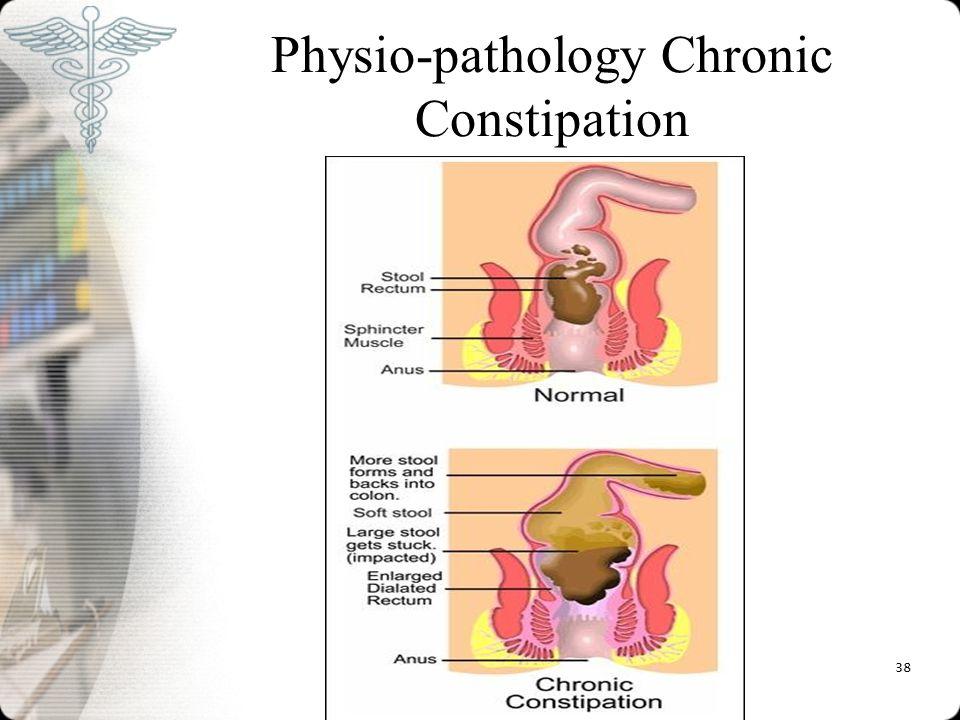 Physio-pathology Chronic Constipation 38
