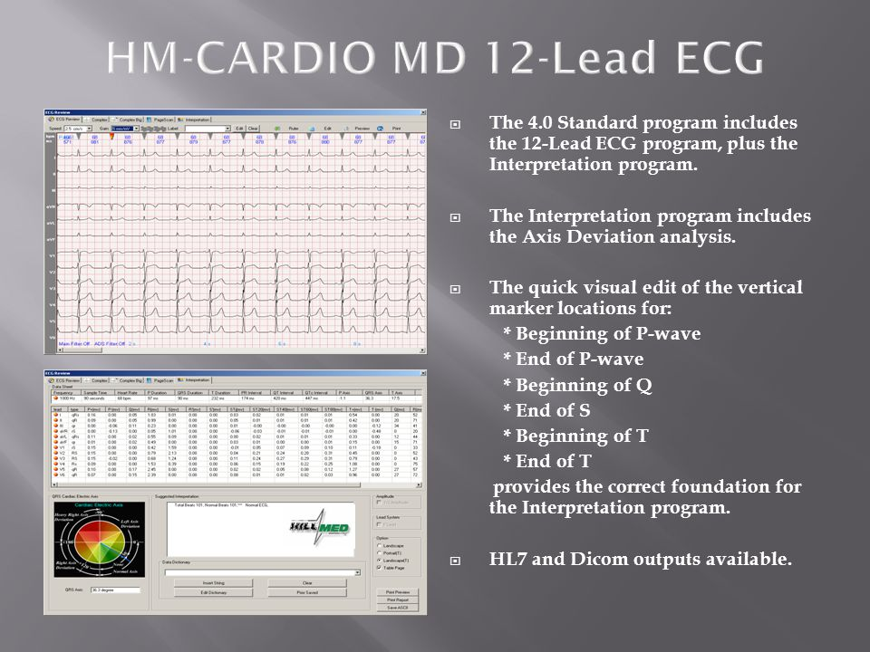  The 4.0 Premier program includes: * 12-Lead ECG * Interpretation * Simple Stress Test * SAECG Late Potentials * QTc & QTd * FrequencyCardioGram (FCG) * Multi-Hour ECG with HRV * Hi-Frequency ECG * VectorCardioGraphy (VCG)  ECG Acquisition is with: * Blue Tooth Transmitter (100 meters) * USB Hi-Res Acquisition Box * HM-Holter MINI-Recorder  A low-cost and simple Holter CS-6A program is an optional add-on to the Winnervision program.