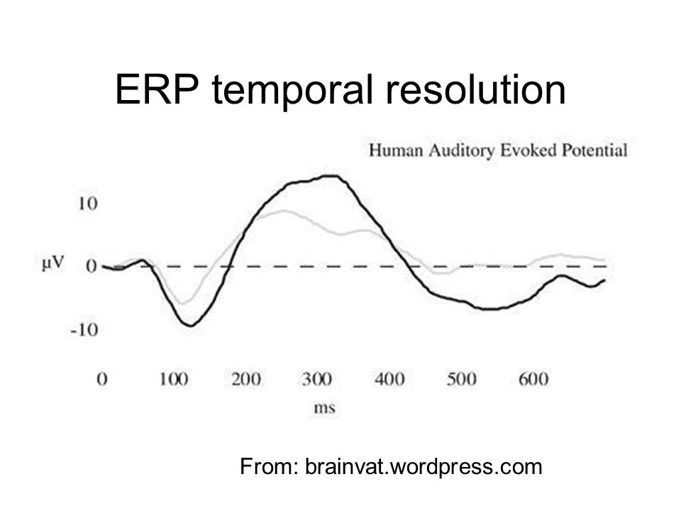 ERP temporal resolution From: brainvat.wordpress.com