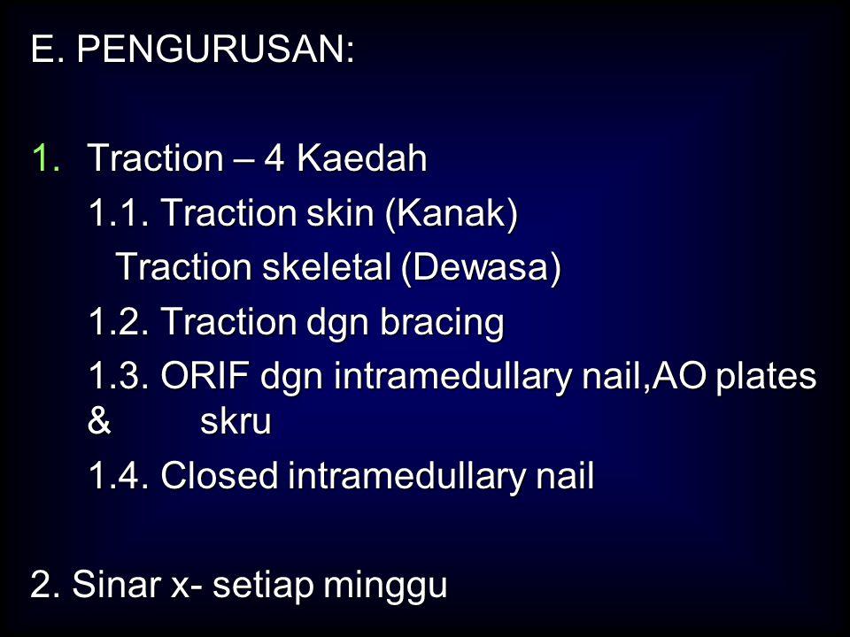 E. PENGURUSAN: 1.Traction – 4 Kaedah 1.1. Traction skin (Kanak) 1.1. Traction skin (Kanak) Traction skeletal (Dewasa) 1.2. Traction dgn bracing 1.2. T