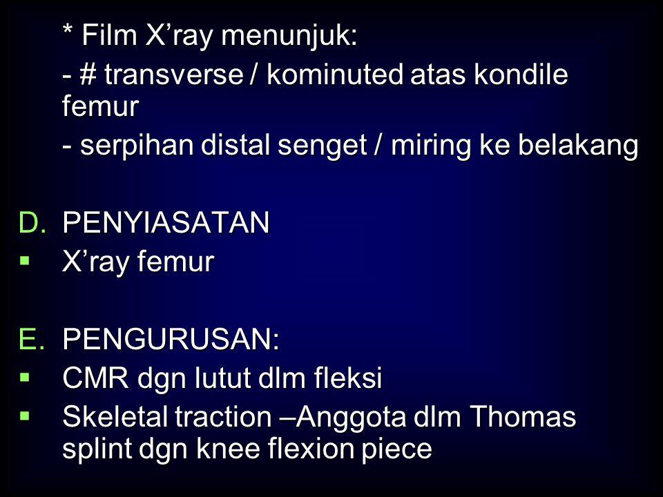 * Film X'ray menunjuk: - # transverse / kominuted atas kondile femur - serpihan distal senget / miring ke belakang D.PENYIASATAN  X'ray femur E.PENGU