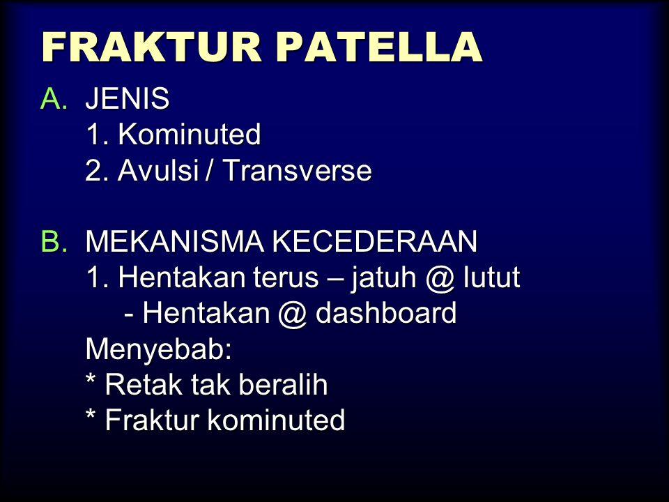 FRAKTUR PATELLA A.JENIS 1. Kominuted 2. Avulsi / Transverse B.MEKANISMA KECEDERAAN 1. Hentakan terus – jatuh @ lutut - Hentakan @ dashboard - Hentakan