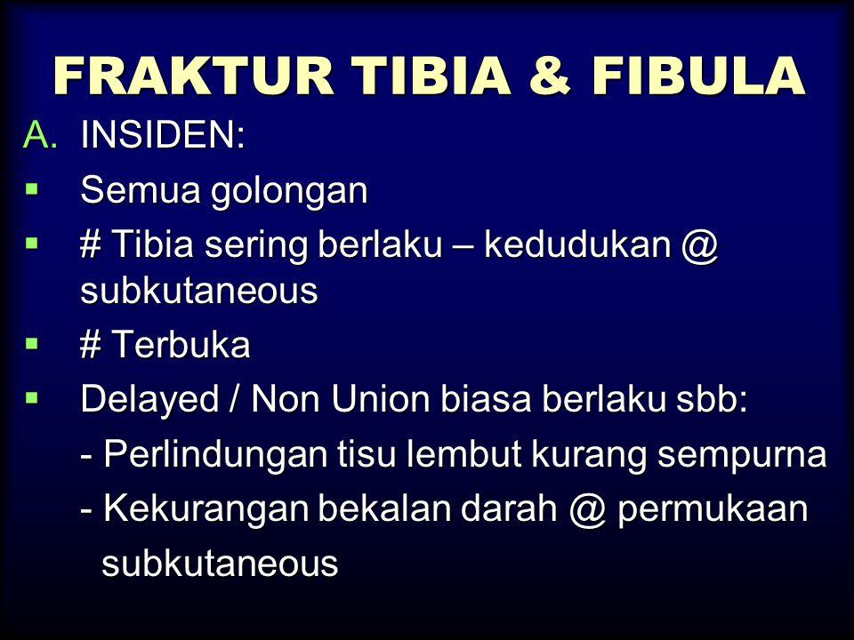 FRAKTUR TIBIA & FIBULA A.INSIDEN:  Semua golongan  # Tibia sering berlaku – kedudukan @ subkutaneous  # Terbuka  Delayed / Non Union biasa berlaku