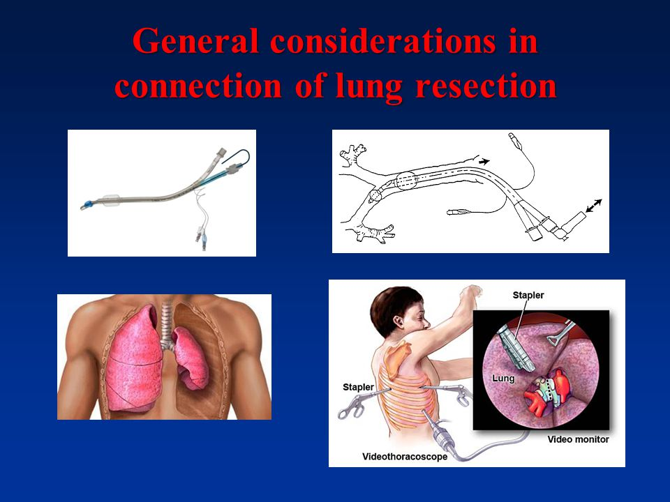 General considerations in connection of lung resection