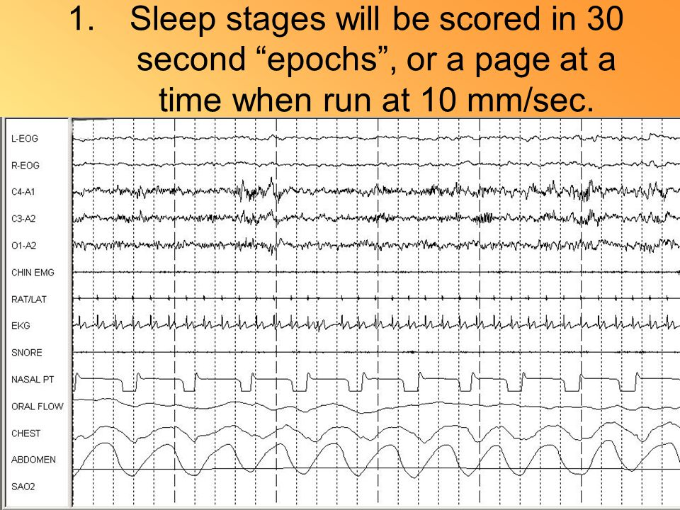 1.Sleep stages will be scored in 30 second epochs , or a page at a time when run at 10 mm/sec.
