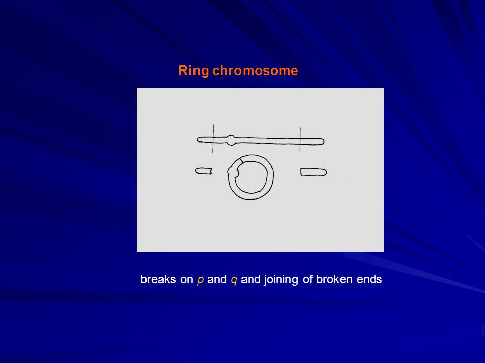 Ring chromosome breaks on p and q and joining of broken ends