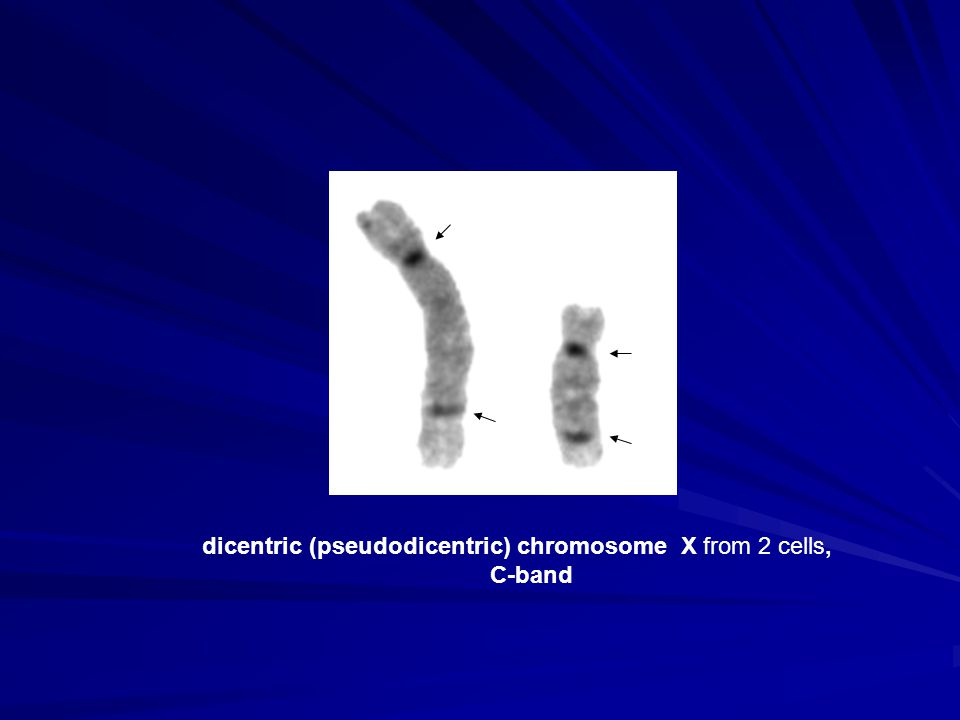 dicentric (pseudodicentric) chromosome X from 2 cells, C-band