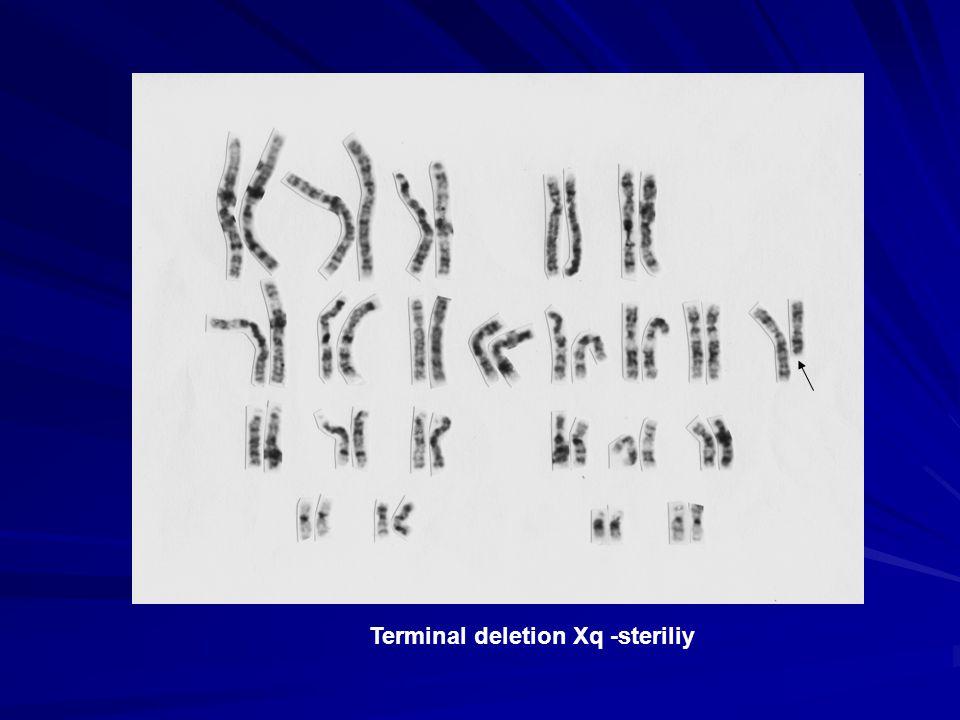 Terminal deletion Xq -steriliy