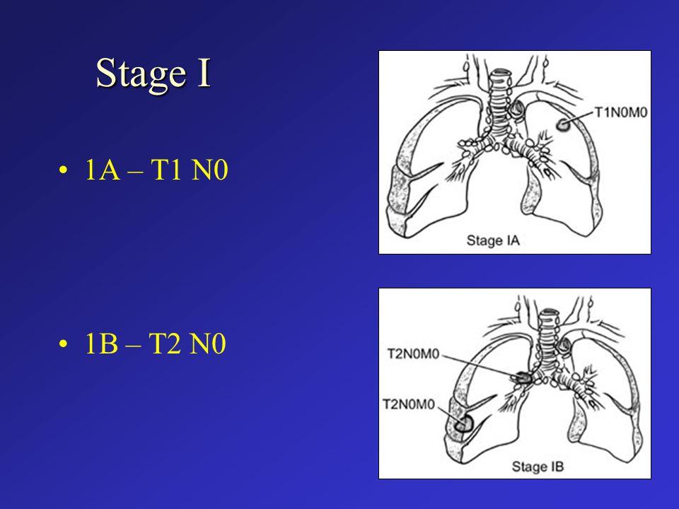 Stage I 1A – T1 N0 1B – T2 N0