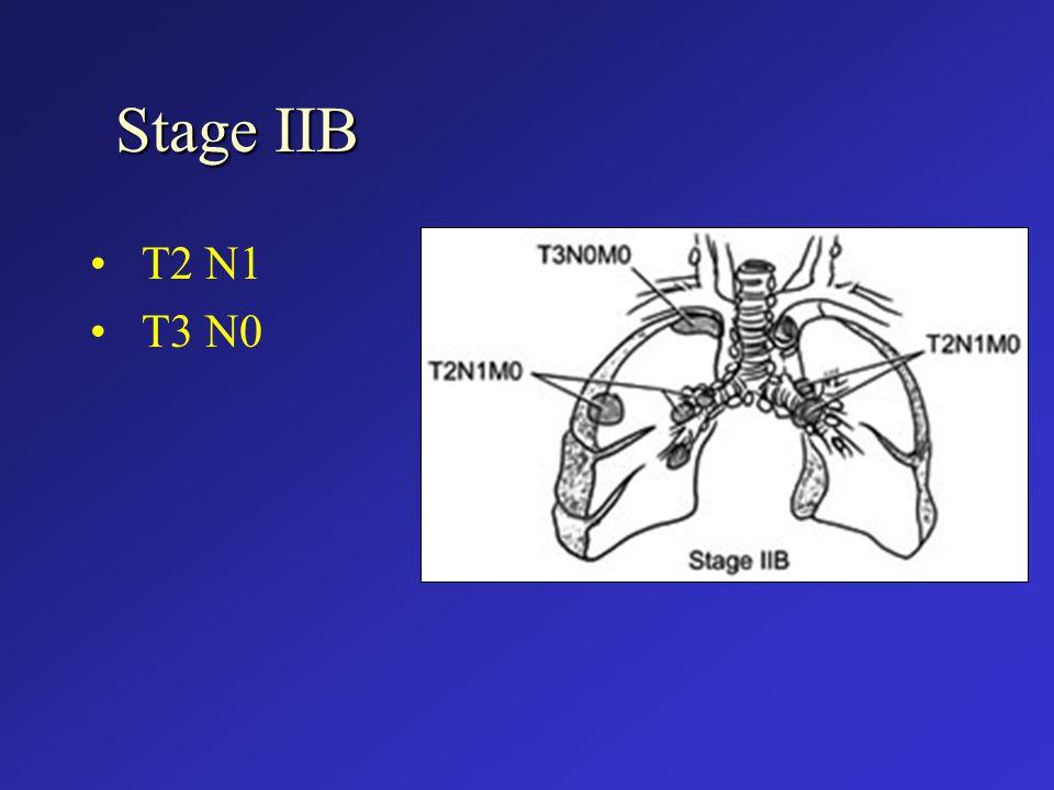 Stage IIB T2 N1 T3 N0