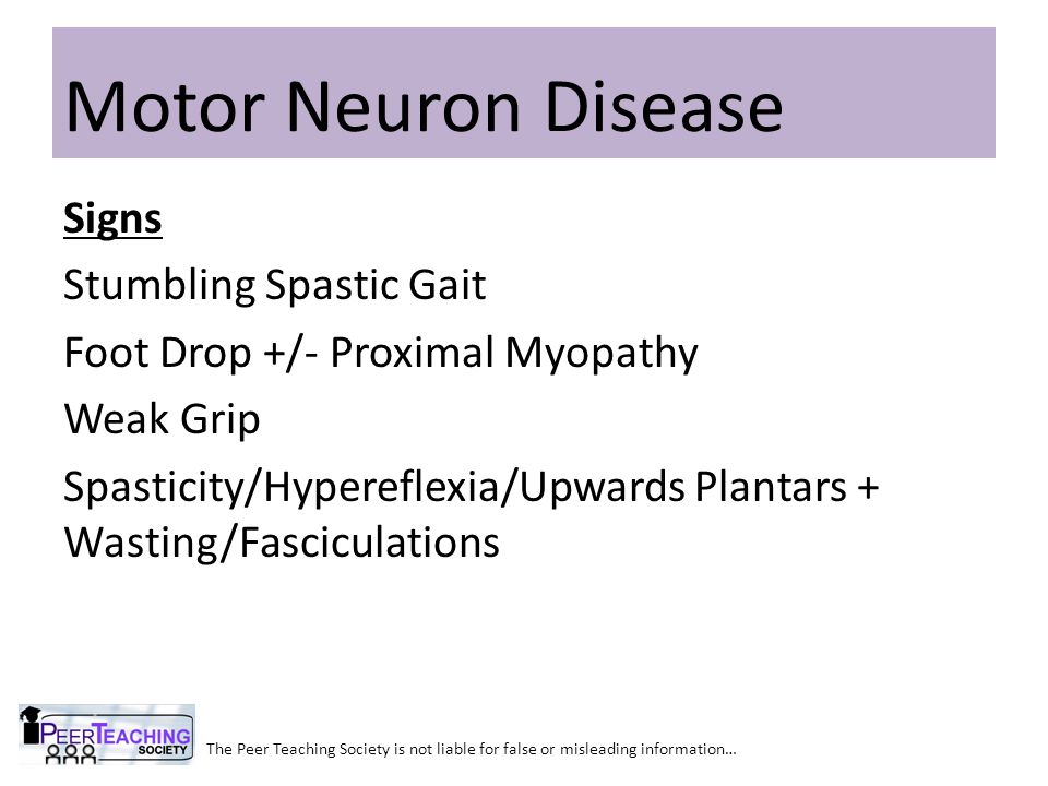 The Peer Teaching Society is not liable for false or misleading information… Motor Neuron Disease Signs Stumbling Spastic Gait Foot Drop +/- Proximal